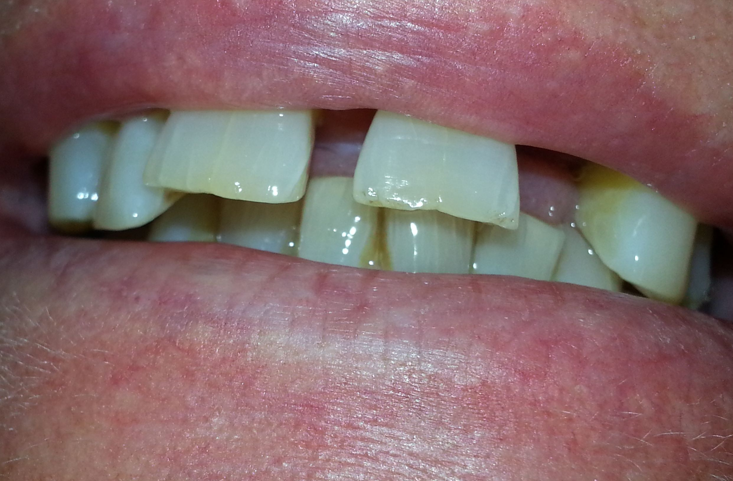 Before Dentures Oct 2013 Dr. Hanson