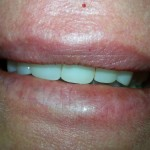 After dentures are placed picture