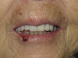 After extraction and denture